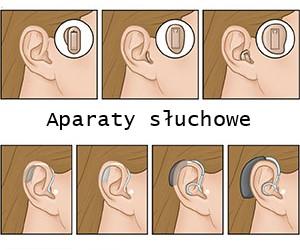 aparaty słuchowe ranking